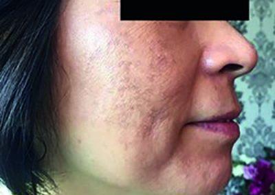 Behandeling pigmentstoornissen - na - Siderma Kortrijk