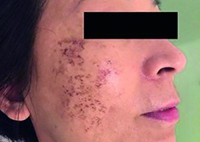 Behandeling pigmentstoornissen - voor - Siderma Kortrijk