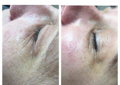 Care - anti aging - voor en na