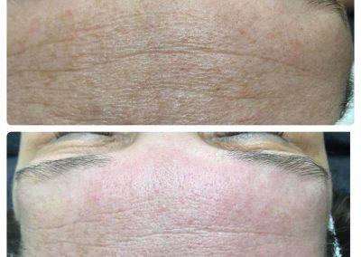 Care behandeling - anti-aging huidverbetering